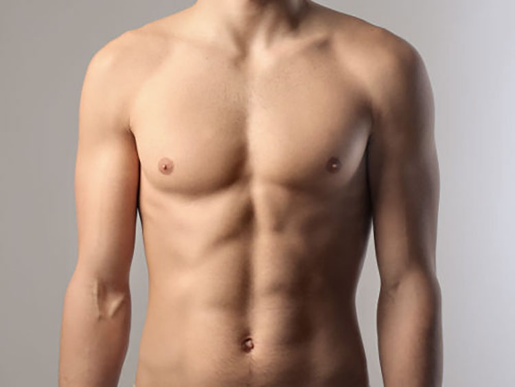 Liposucción de Abdomen con Diseño Muscular