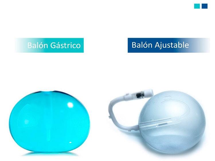Diferencias entre Balón Intragástrico y Balón Ajustable