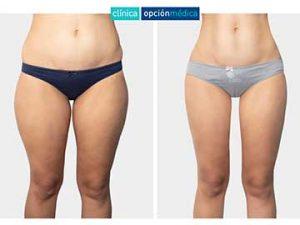 liposucción ultrasónica