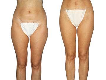 Antes y Después de la Liposucción 2
