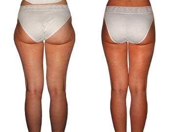 Antes y Después de la Liposucción 3