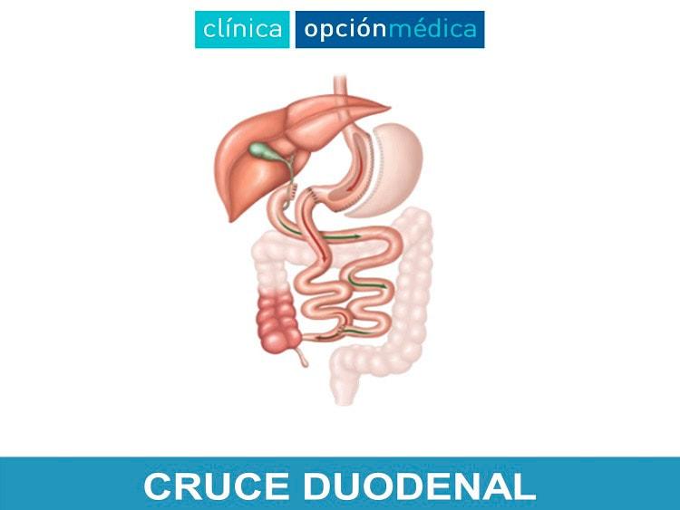 Cruce Duodenal