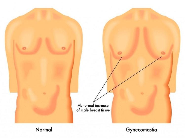 Precio de la Ginecomastia