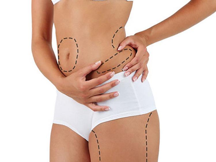 Liposucción: Método para Perder Volumen