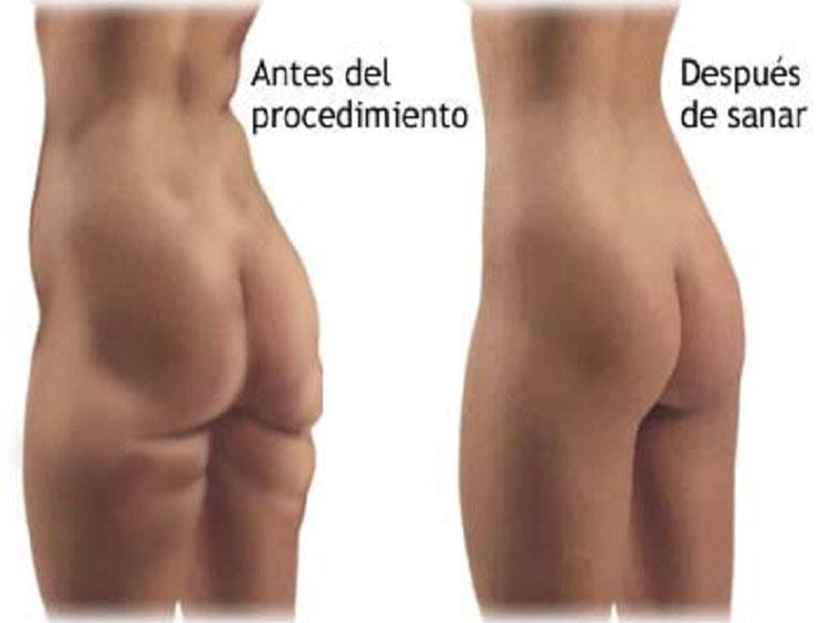 Precio de la Liposucción