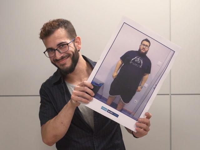 Testimonios de Pacientes que querían combatir la obesidad
