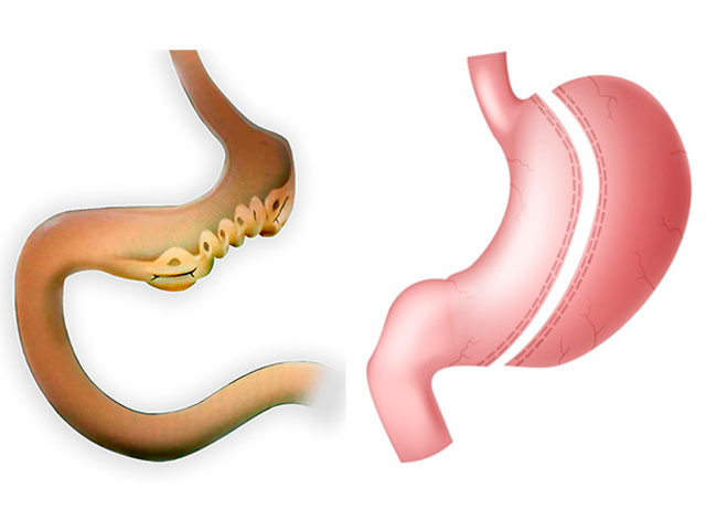 Diferencias entre Endomanga y Tubo Gástrico