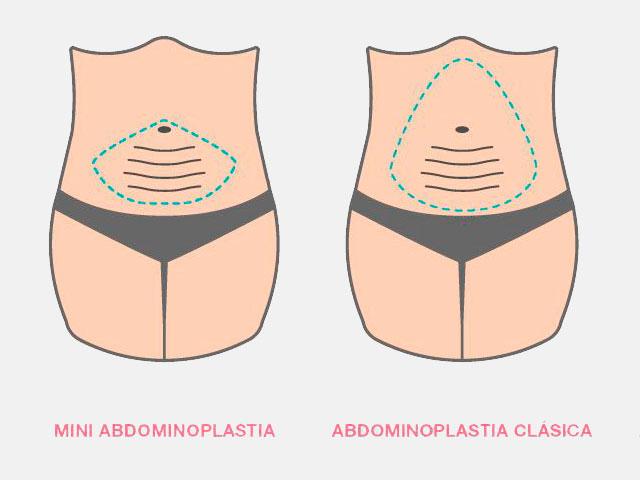 Diferencias entre Adbominoplastia Mini y Completa