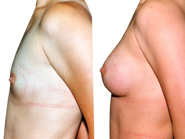 Testimonios Cirugía Mamaria