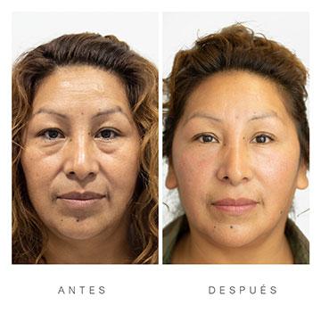 Antes y Después del Ácido Hialurónico