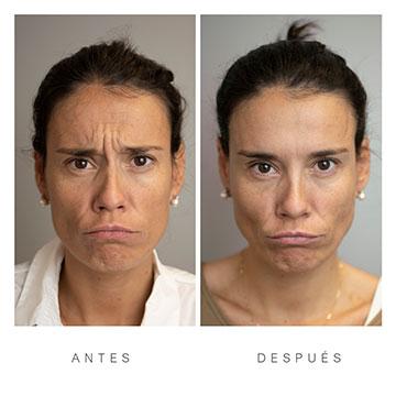 Antes y Después de la Toxina Botulínica o Botox