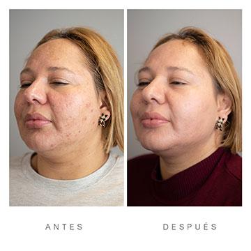 Antes y Después del Fraile Facial