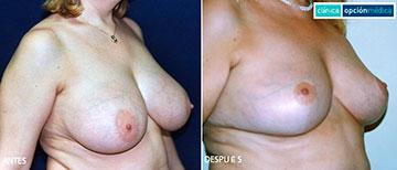Antes y Después de la Reducción de Mamas