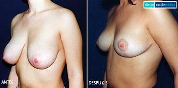 Antes y Después de la Mastopexia