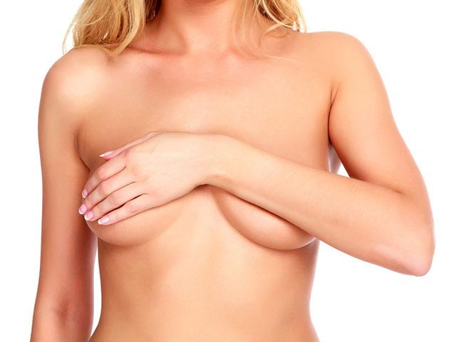 Tipos de Cirugía Mamaria