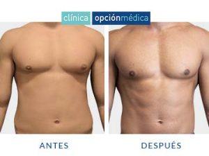 liposucción abdomen hombre clínica opción médica