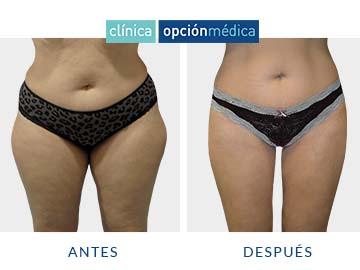 antes y después liposucción clínica opción médica