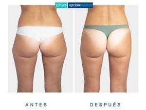Liposucción resultados clínica opción médica