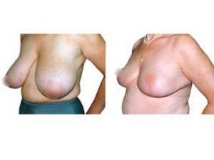 antes y después reducción de mamas clínica opción médica