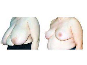 resultados reducción de mamas clínica opción médica