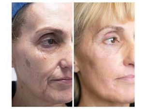 antes y después tratamiento de manchas faciales
