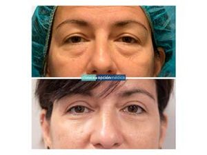 blefaroplastia en mujeres antes y después