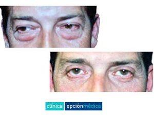Blefaroplastia en hombres antes y después